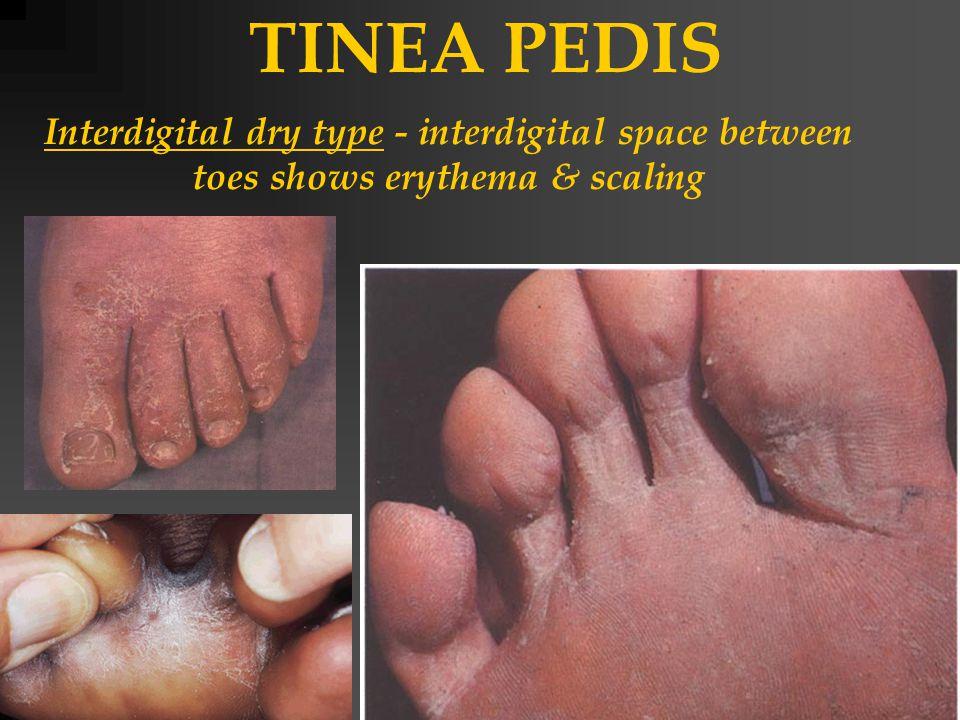 TINEA PEDIS Interdigital dry type - interdigital space between toes shows erythema & scaling