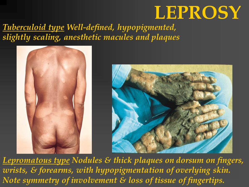 LEPROSY Tuberculoid type Well-defined, hypopigmented, slightly scaling, anesthetic macules and plaques Lepromatous type Nodules & thick plaques on dorsum on fingers, wrists, & forearms, with hypopigmentation of overlying skin.
