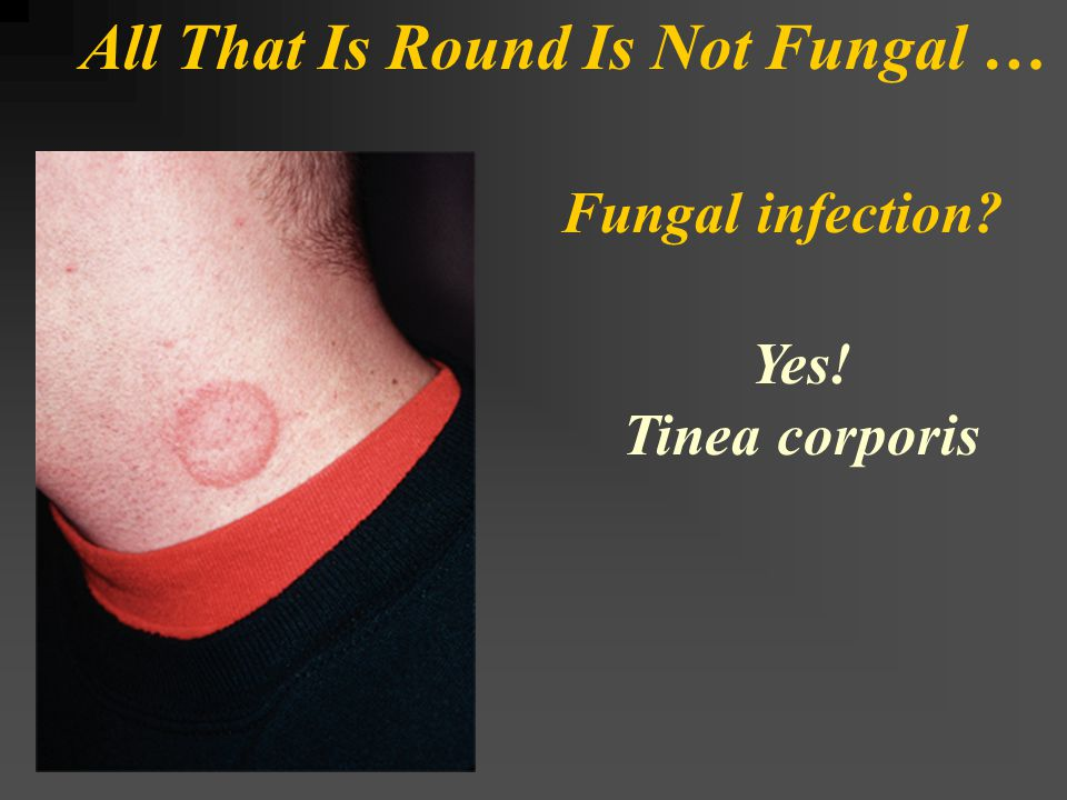 All That Is Round Is Not Fungal … Fungal infection? Yes! Tinea corporis