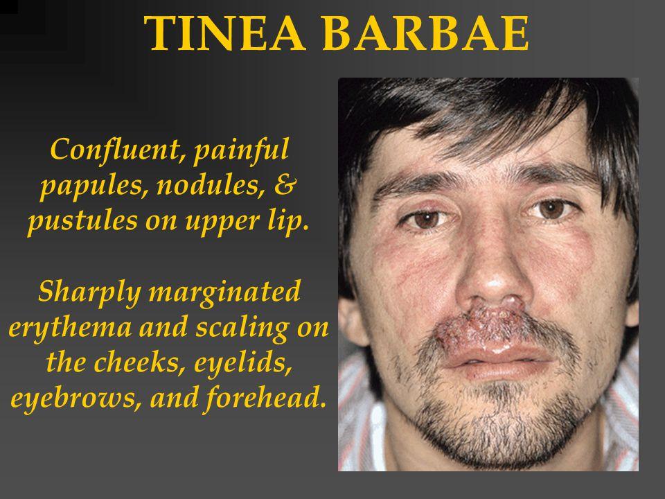 TINEA BARBAE Confluent, painful papules, nodules, & pustules on upper lip.