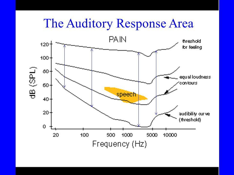 The Auditory Response Area
