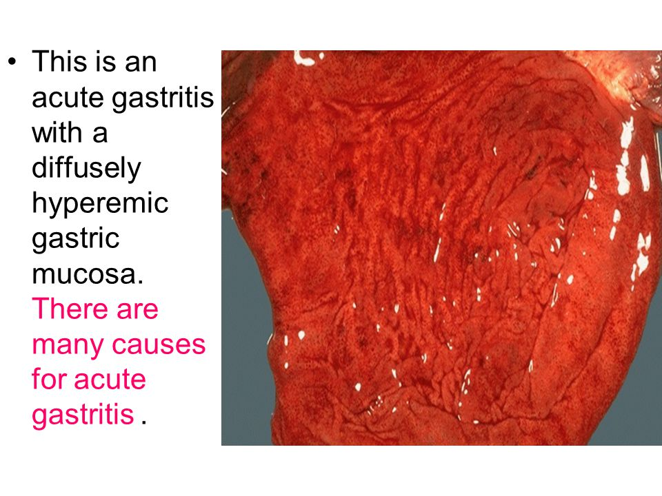 This is an acute gastritis with a diffusely hyperemic gastric mucosa. There are many causes for acute gastritis.