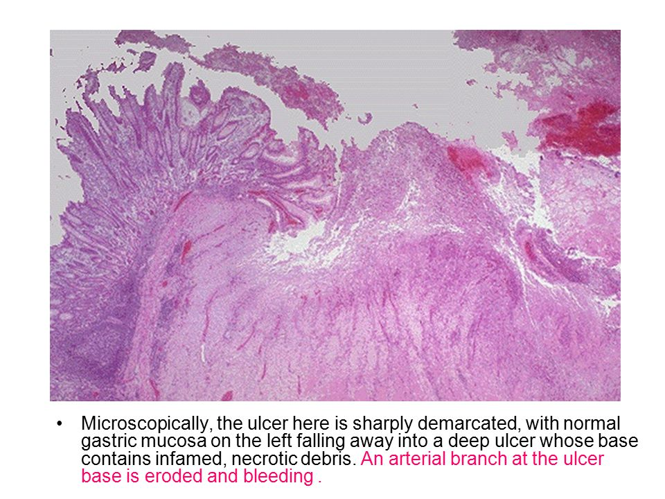 Microscopically, the ulcer here is sharply demarcated, with normal gastric mucosa on the left falling away into a deep ulcer whose base contains infam