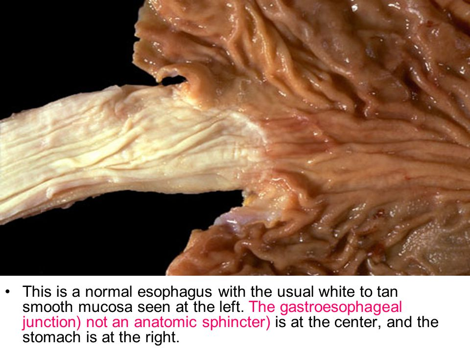 This is a normal esophagus with the usual white to tan smooth mucosa seen at the left. The gastroesophageal junction (not an anatomic sphincter) is at