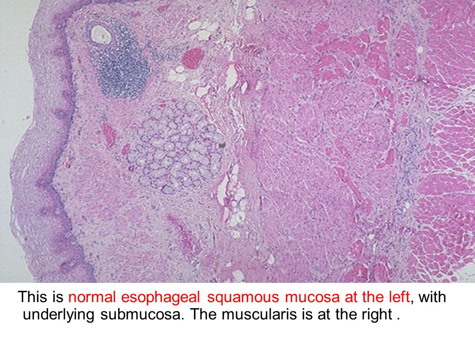 At higher magnification with more advanced necrosis, the small intestinal mucosa shows hemorrhage with acute inflammation in this case.