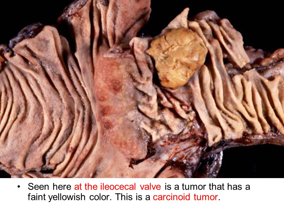 Seen here at the ileocecal valve is a tumor that has a faint yellowish color. This is a carcinoid tumor.