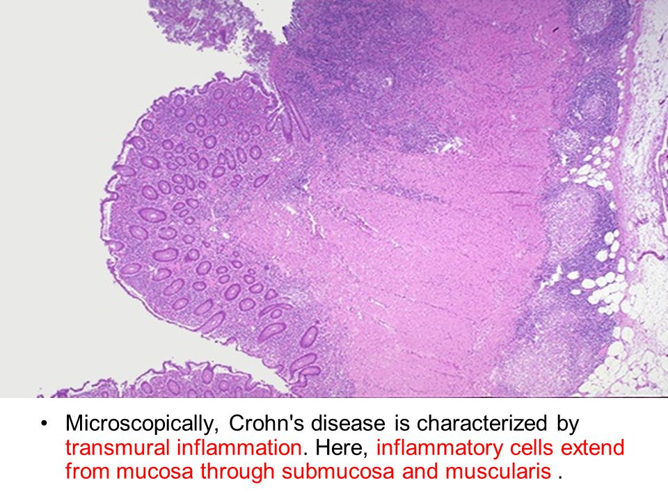 Microscopically, Crohn's disease is characterized by transmural inflammation. Here, inflammatory cells extend from mucosa through submucosa and muscul