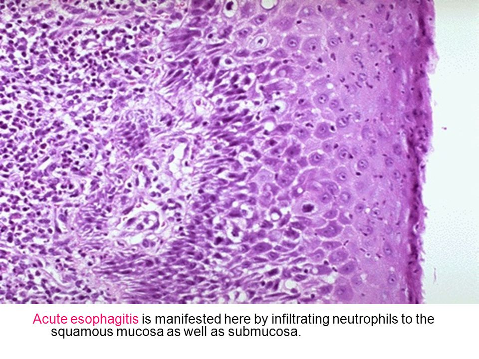 History of smoking and/or alcoholism is often present in patients with esophageal squamous carcinoma, while a history of Barrett s esophagus precedes development of esophageal adenocarcinoma in many cases.