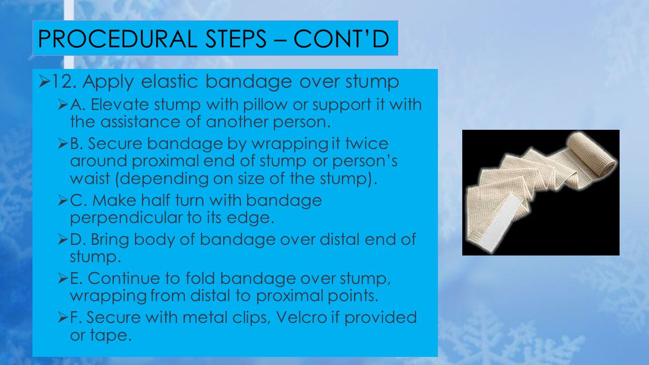  12. Apply elastic bandage over stump  A. Elevate stump with pillow or support it with the assistance of another person.  B. Secure bandage by wrap