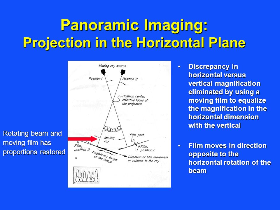 Panoramic Imaging: Projection in the Horizontal Plane Rotating beam and moving film has proportions restored Discrepancy in horizontal versus vertical
