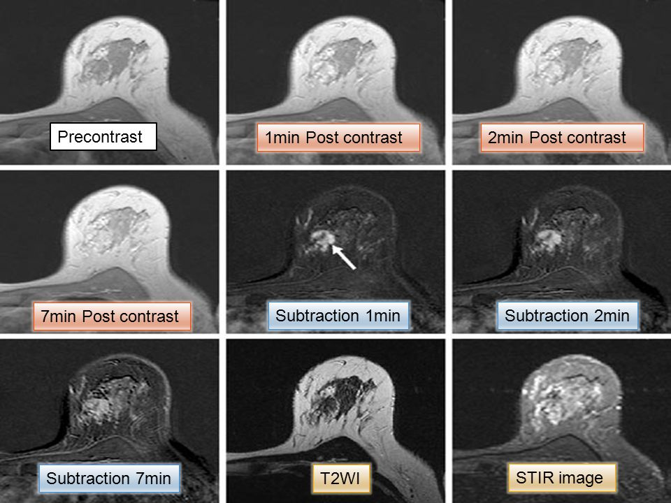 Precontrast Subtraction 1min T2WI STIR image 1min Post contrast2min Post contrast 7min Post contrast Subtraction 2min Subtraction 7min