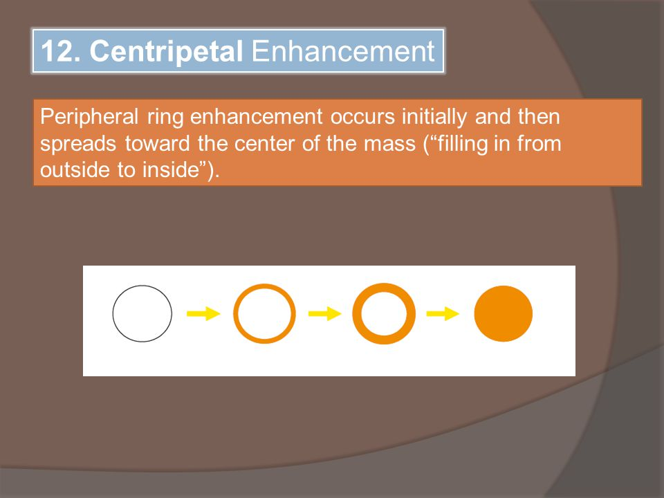 """12. Centripetal Enhancement Peripheral ring enhancement occurs initially and then spreads toward the center of the mass (""""filling in from outside to i"""