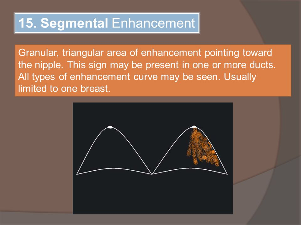 15. Segmental Enhancement Granular, triangular area of enhancement pointing toward the nipple.