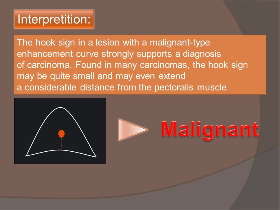 The hook sign in a lesion with a malignant-type enhancement curve strongly supports a diagnosis of carcinoma.