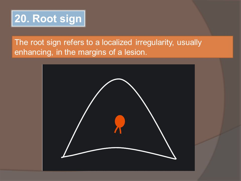 20. Root sign The root sign refers to a localized irregularity, usually enhancing, in the margins of a lesion.