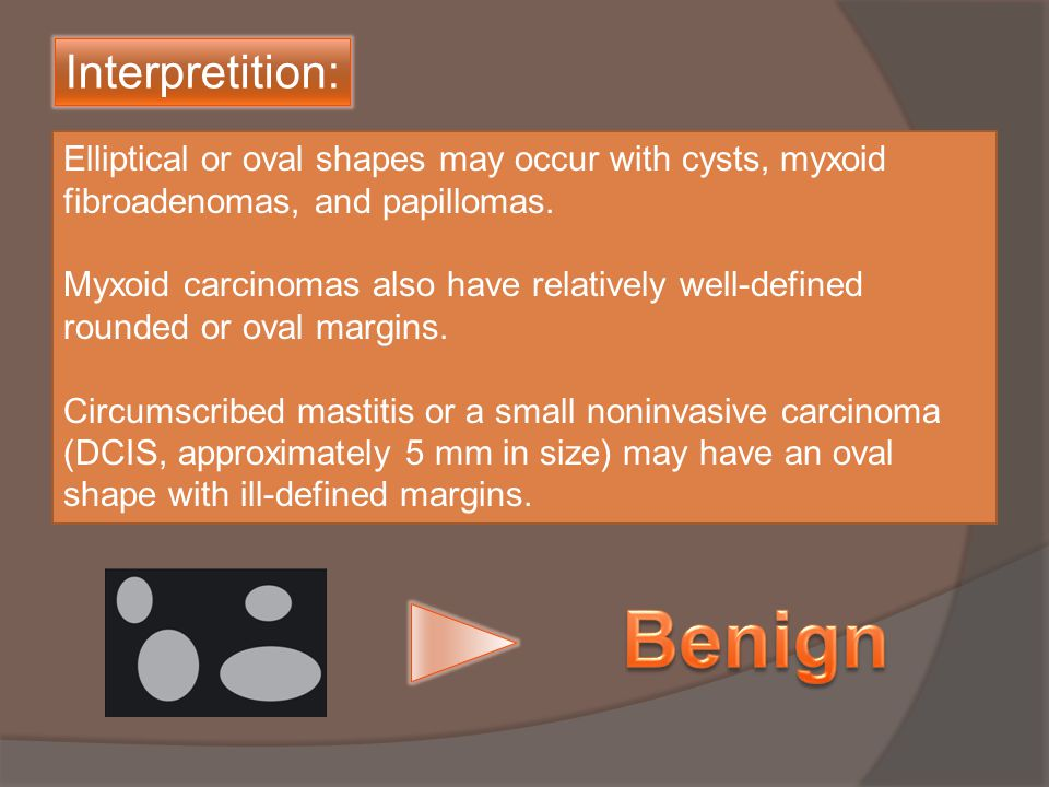 Elliptical or oval shapes may occur with cysts, myxoid fibroadenomas, and papillomas.