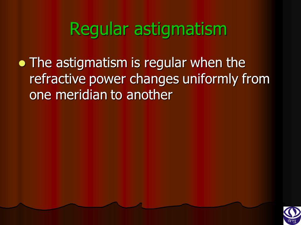 A etiology :- A etiology :- 1. Corneal astigmatism 2. Lenticular astigmatism 3. Retinal astigmatism