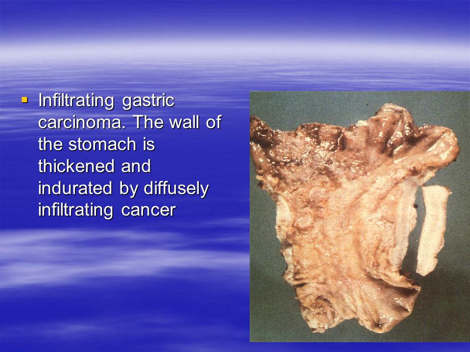  Infiltrating gastric carcinoma. The wall of the stomach is thickened and indurated by diffusely infiltrating cancer