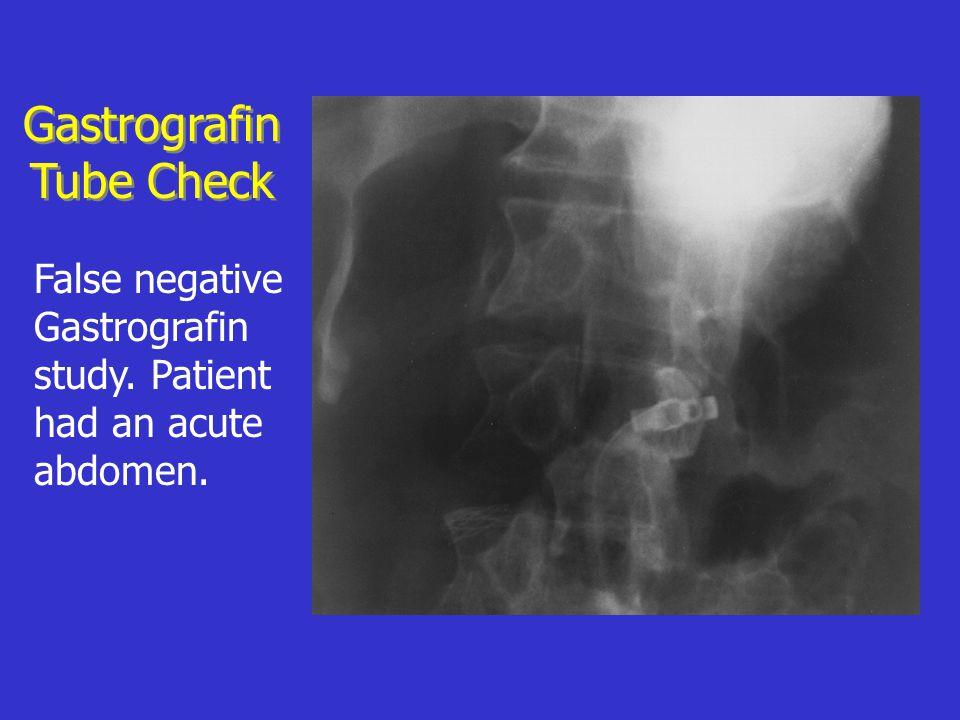 False negative Gastrografin study. Patient had an acute abdomen. Gastrografin Tube Check