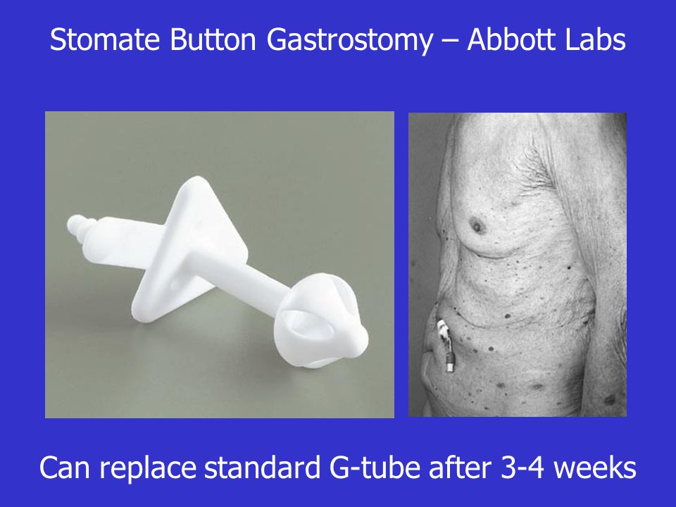 Stomate Button Gastrostomy – Abbott Labs Can replace standard G-tube after 3-4 weeks