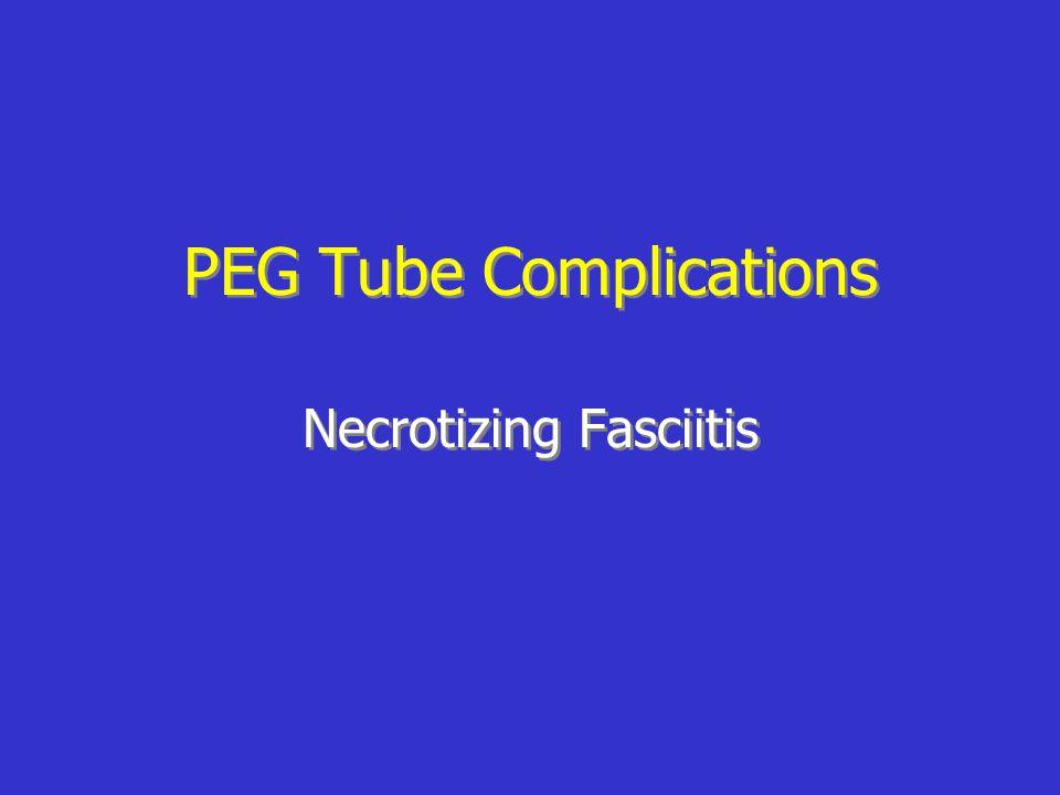PEG Tube Complications Necrotizing Fasciitis