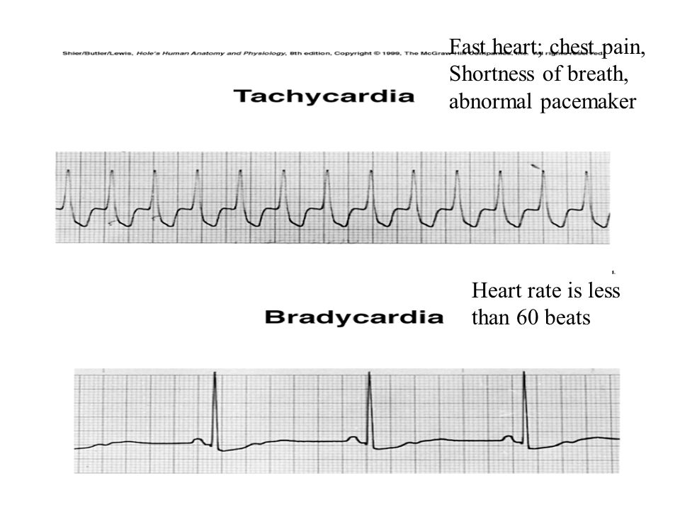 Fast heart; chest pain, Shortness of breath, abnormal pacemaker Heart rate is less than 60 beats