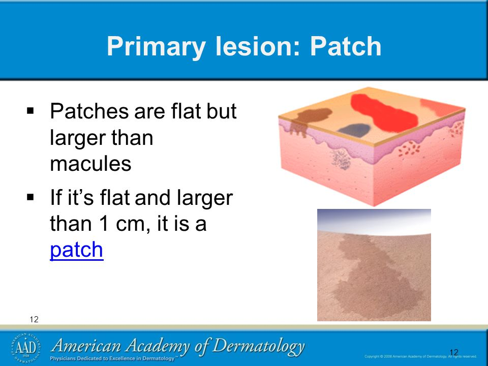 12 Primary lesion: Patch  Patches are flat but larger than macules  If it's flat and larger than 1 cm, it is a patch patch 12