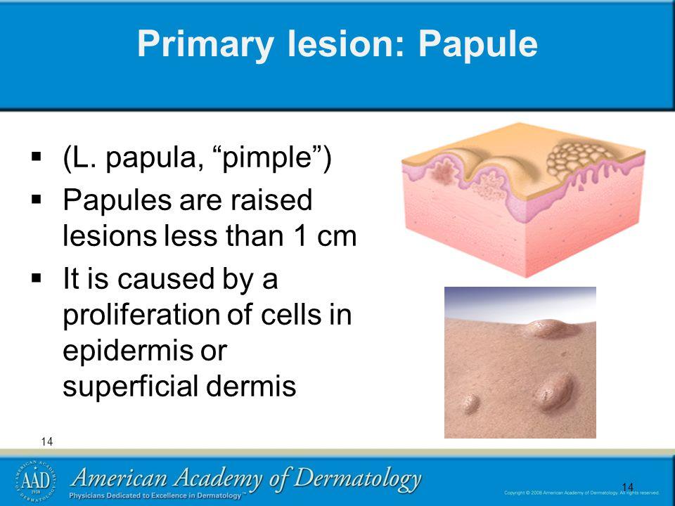 14 Primary lesion: Papule  (L.