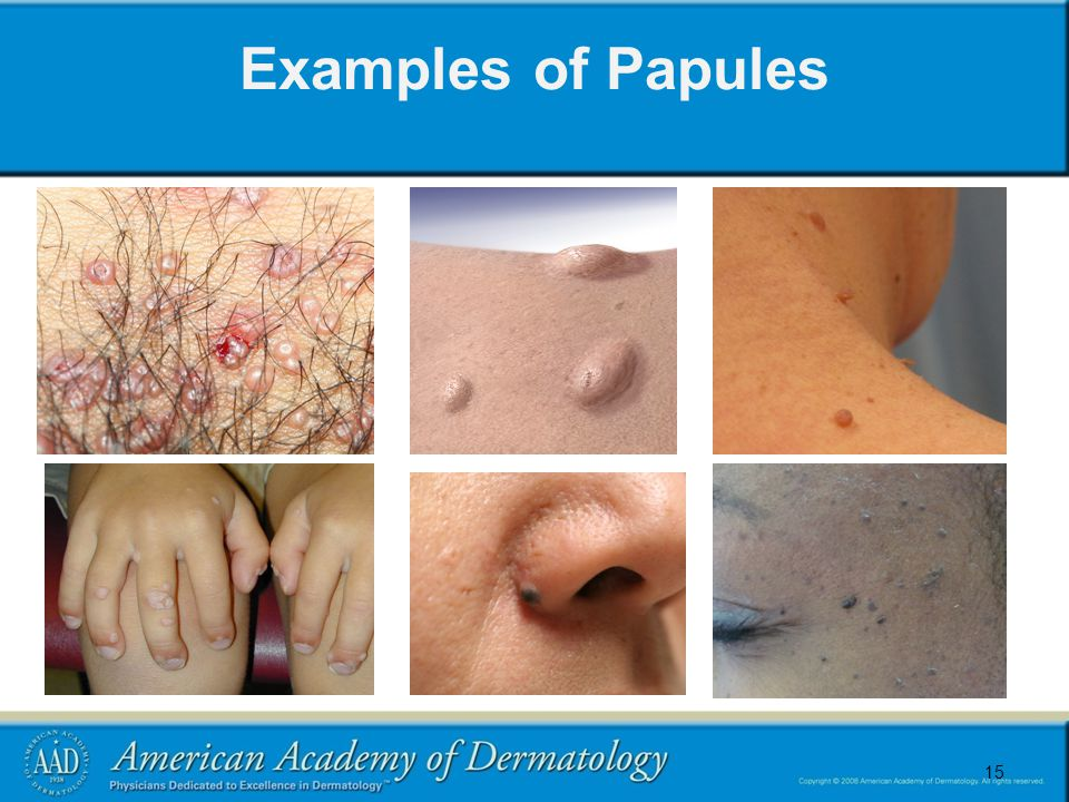 15 Examples of Papules 15