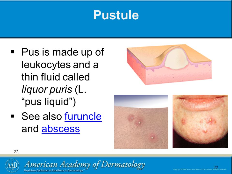 22 Pustule  Pus is made up of leukocytes and a thin fluid called liquor puris (L.
