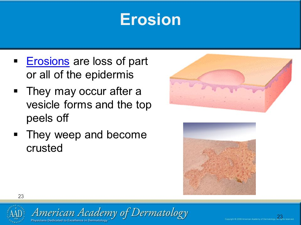 23 Erosion  Erosions are loss of part or all of the epidermis Erosions  They may occur after a vesicle forms and the top peels off  They weep and become crusted 23