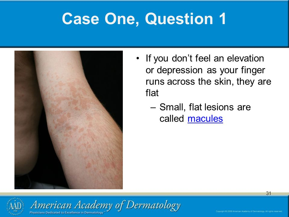 31 Case One, Question 1 If you don't feel an elevation or depression as your finger runs across the skin, they are flat –Small, flat lesions are called maculesmacules