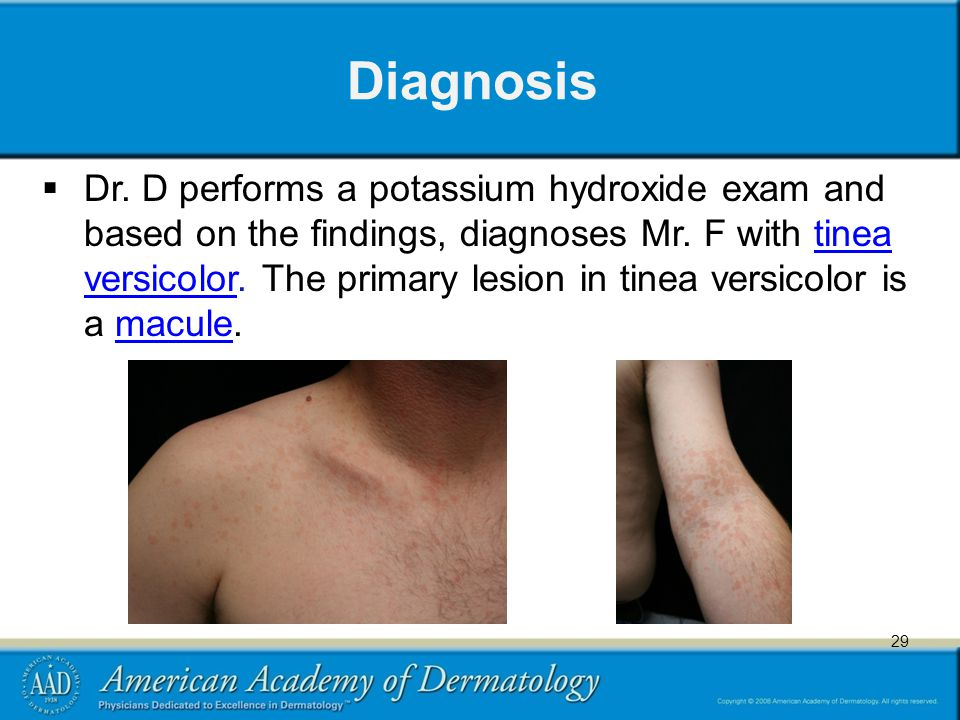 45 Diagnosis  Dr. D performs a potassium hydroxide exam and based on the findings, diagnoses Mr.