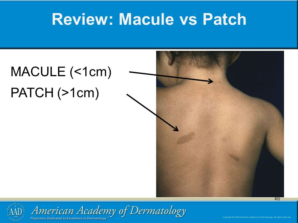 48 Review: Macule vs Patch 48 MACULE (<1cm) PATCH (>1cm)