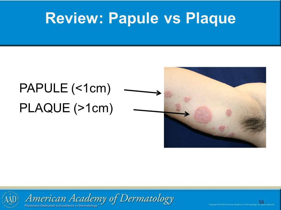58 Review: Papule vs Plaque 58 PAPULE (<1cm) PLAQUE (>1cm)