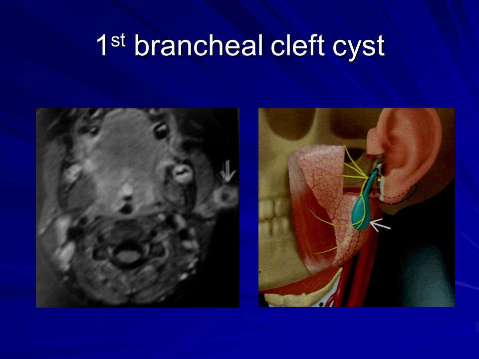 1 st brancheal cleft cyst