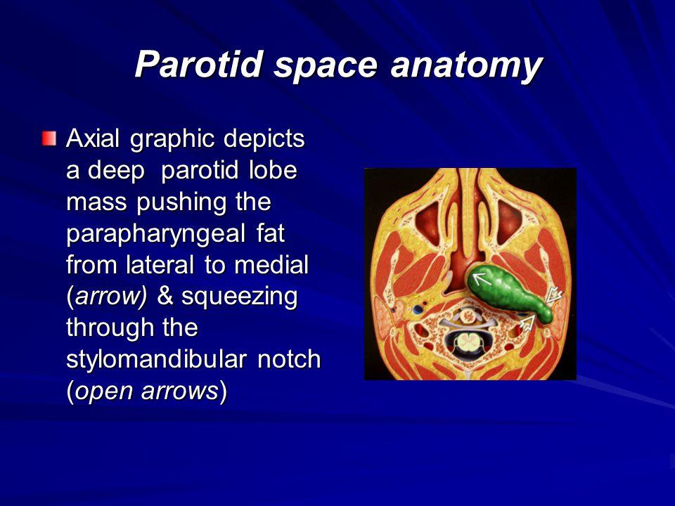 General features Parotid gland has intraglandular lymph nodes ( not submandibular or sublingual glands ) Normal parotid : up to 32 intraglandular lymph nodes Parotid nodes are 1 st order nodal site for skin of upper face, external ear, scalp (75%) Systemic metastasis to parotid nodes rare Metastasis = 4% of all salivary neoplasm Clinical presentation usually – external ear, scalp, upper face skin cancer with enlarging parotid masses.