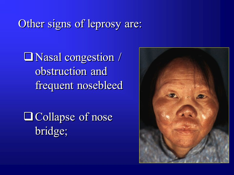 Other signs of leprosy are:  Collapse of nose bridge;  Nasal congestion / obstruction and frequent nosebleed