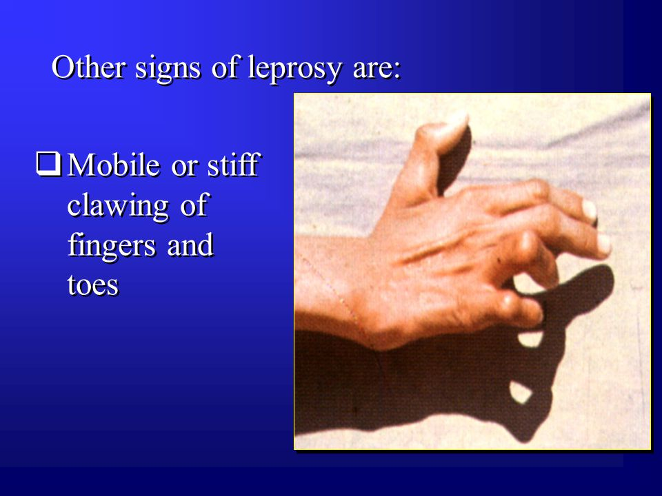 Other signs of leprosy are:  Mobile or stiff clawing of fingers and toes