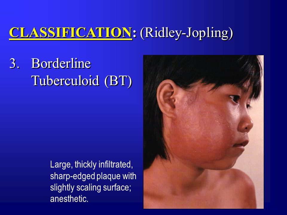 CLASSIFICATION: (Ridley-Jopling) Large, thickly infiltrated, sharp-edged plaque with slightly scaling surface; anesthetic.