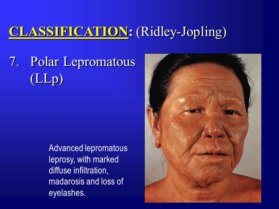 CLASSIFICATION: (Ridley-Jopling) Advanced lepromatous leprosy, with marked diffuse infiltration, madarosis and loss of eyelashes.