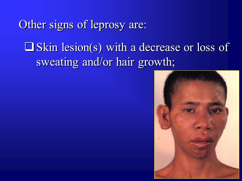 Other signs of leprosy are:  Skin lesion(s) with a decrease or loss of sweating and/or hair growth;