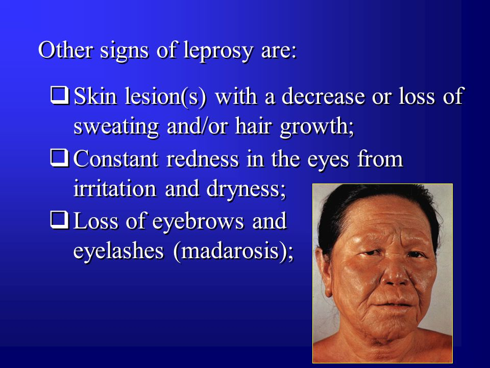 Other signs of leprosy are:  Skin lesion(s) with a decrease or loss of sweating and/or hair growth;  Constant redness in the eyes from irritation and dryness;  Loss of eyebrows and eyelashes (madarosis);