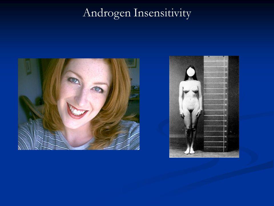 Androgen Insensitivity
