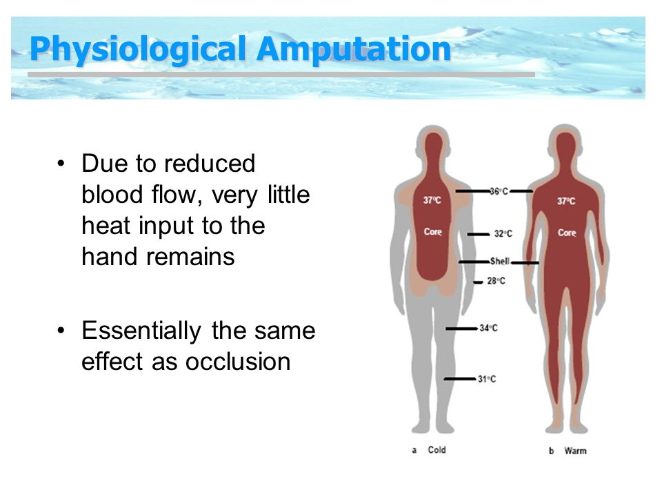 Physiological Amputation Due to reduced blood flow, very little heat input to the hand remains Essentially the same effect as occlusion