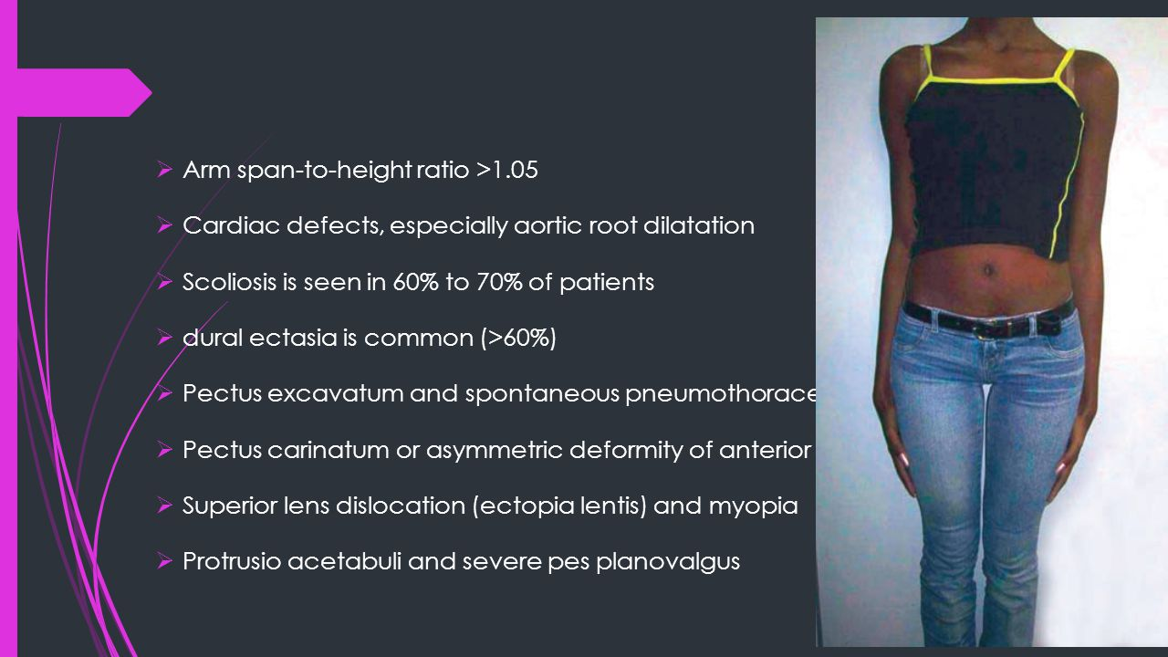  Arm span-to-height ratio >1.05  Cardiac defects, especially aortic root dilatation  Scoliosis is seen in 60% to 70% of patients  dural ectasia is