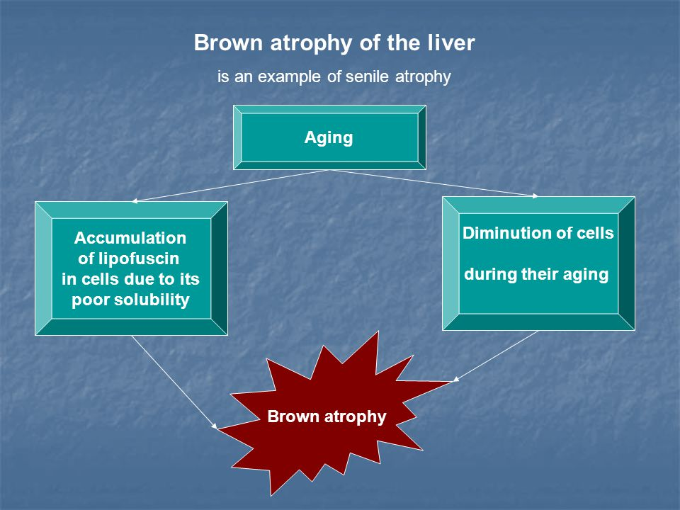 Brown atrophy of the liver is an example of senile atrophy Aging Accumulation of lipofuscin in cells due to its poor solubility Diminution of cells du