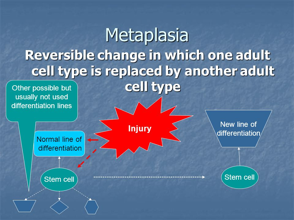 Metaplasia Reversible change in which one adult cell type is replaced by another adult cell type Stem cell Normal line of differentiation Other possib
