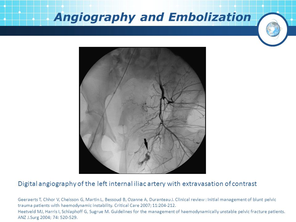 Angiography and Embolization Digital angiography of the left internal iliac artery with extravasation of contrast Geeraerts T, Chhor V, Cheisson G, Ma