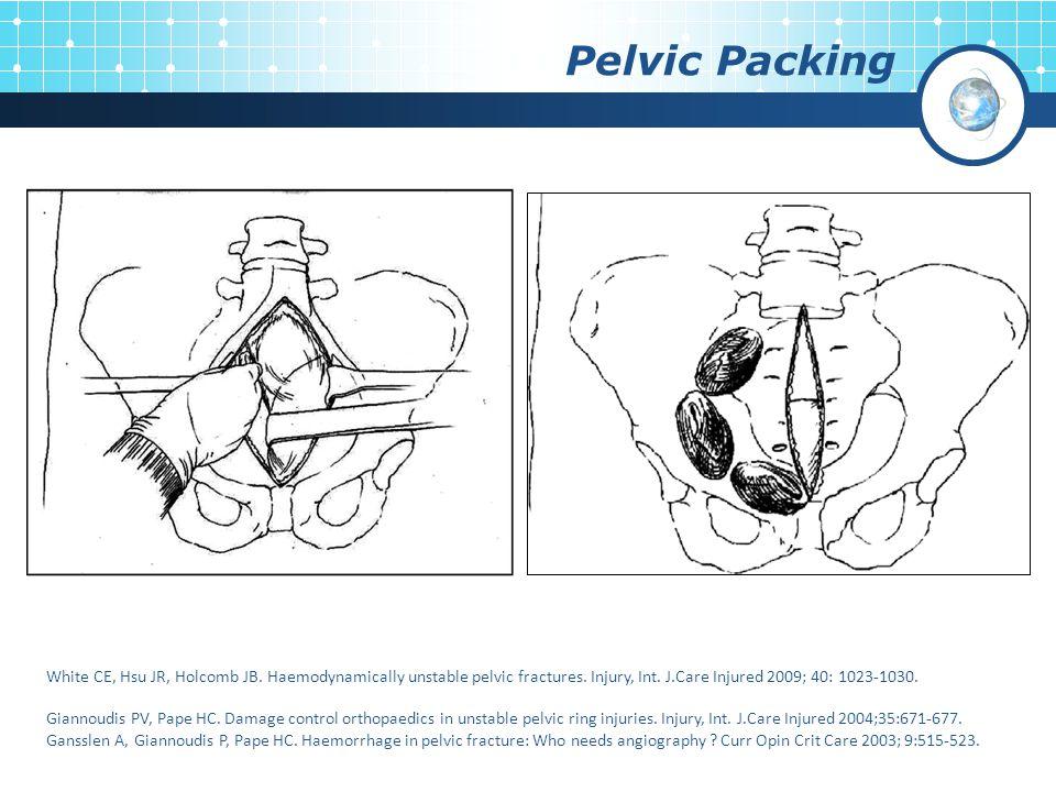 Pelvic Packing White CE, Hsu JR, Holcomb JB. Haemodynamically unstable pelvic fractures. Injury, Int. J.Care Injured 2009; 40: 1023-1030. Giannoudis P